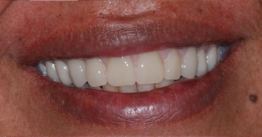 """""""All-on-4"""" dental implants and full mouth rehabilitation – After treatment"""