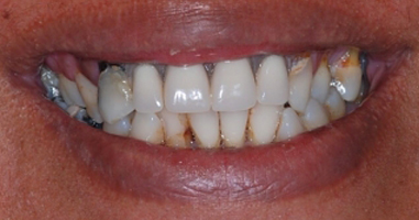 """""""All-on-4"""" dental implants and full mouth rehabilitation – Before treatment"""