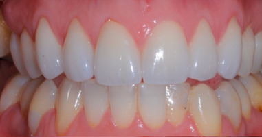 Beautiful felspathic all porcelain veneers – After treatment