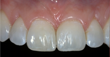 Direct composite resin bonding – After treatment
