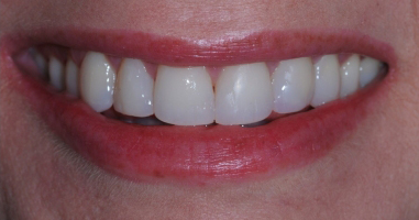 Direct composite resin veneers with KOR tooth whitening – After treatment
