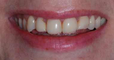 Direct composite resin veneers with KOR tooth whitening – Before treatment