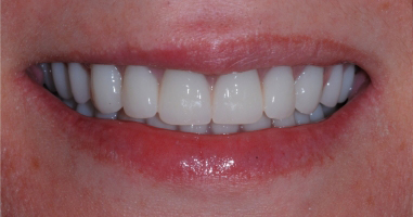Full mouth rehabilitation – After treatment