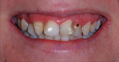 Full mouth rehabilitation – Before treatment