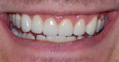Gum-contouring-and-all-Ceramic-Crowns-After