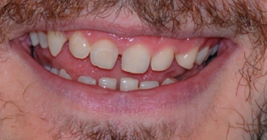 Gum-contouring-and-all-Ceramic-Crowns-Before
