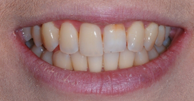 KOR tooth whitening treatment – Before treatment