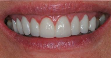Laser-gum-contouring-Ceramic-Crowns-After