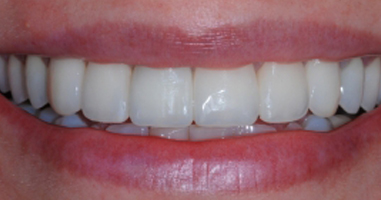 Metal free all ceramic crowns – After treatment