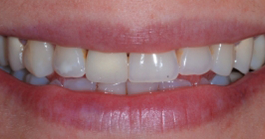 Metal free all ceramic crowns – Before treatment