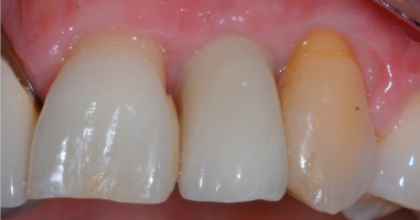 Soft-tissue-grafting-and-Implant-tooth-replacement-After