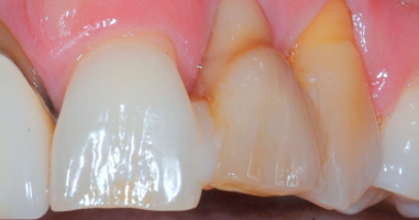 Soft-tissue-grafting-and-Implant-tooth-replacement-Before