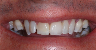 Tooth replacement with implant – After treatment