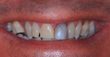 Tooth replacement with implant – Before treatment