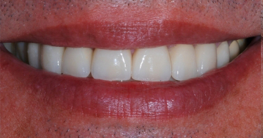 Treatment of severe wear with all ceramic crowns and veneers – After treatment