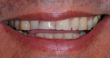 Treatment of severe wear with all ceramic crowns and veneers – Before treatment