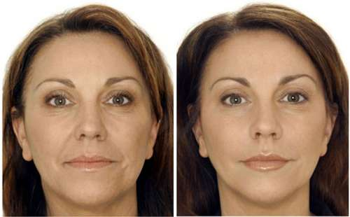 before-after-botox