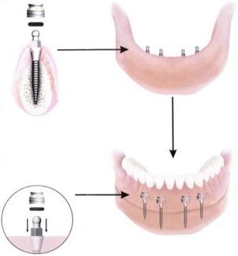 Diagram of implants
