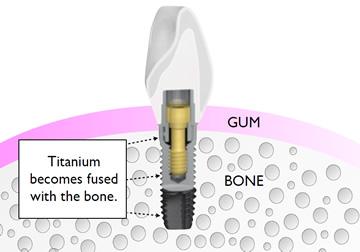 osseointegration-dental-implants