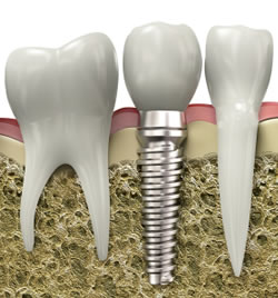 sectional-view-dental-implant